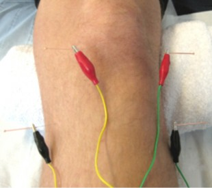 electro-acupuncture treatment in session at physiotherapy centre