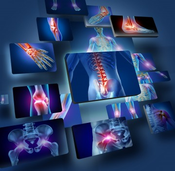 physiotherapy conditon